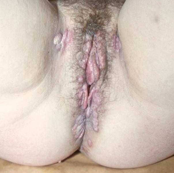 широкие кондиломы при сифилисе у женщин