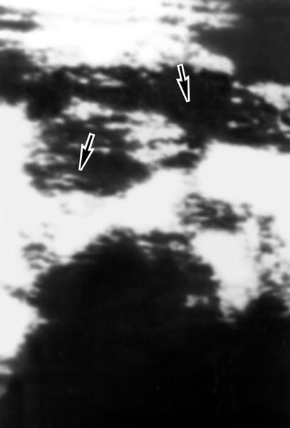Рис. 6б). Ультразвуковая сканограмма поджелудочной железы при остром панкреатите (указана стрелками): отмечается резкое увеличение головки органа, неровность контуров, неравномерное ослабление эхоструктуры