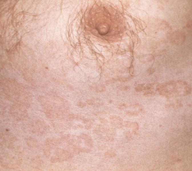 Рис. 2. Крупные слившиеся розовые пятна на груди при отрубевидном лишае
