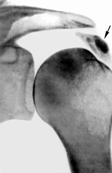 Ретгенограмма плечевого сустава при кальцифицирующем бурсите.