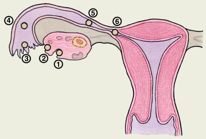 Внематочная беременность первая беременность