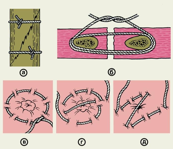 Рис. 8. Схематическое изображение круговых швов: а — <a href=