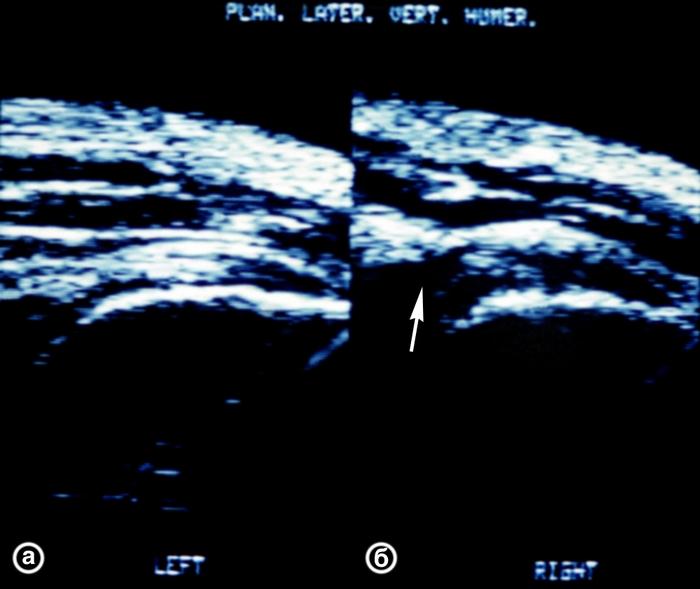 Рис. 16. Ультрасонограммы плечевых суставов (латеральный вертикальный срез) в норме (а) и при частичном разрыве сухожилия надостной мышцы (б): на рисунке б контур сухожилия частично прерывается, место разрыва указано стрелкой