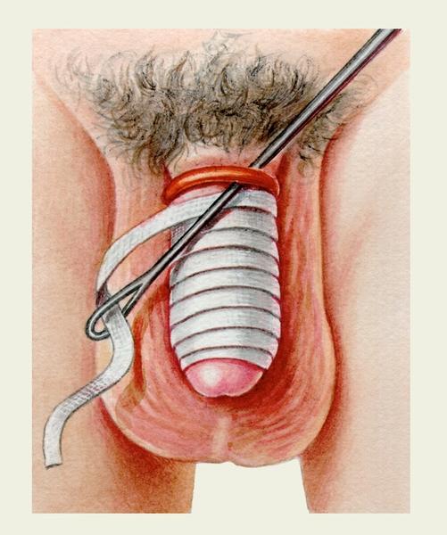 Фото писающих половых органов крупно 14 фотография