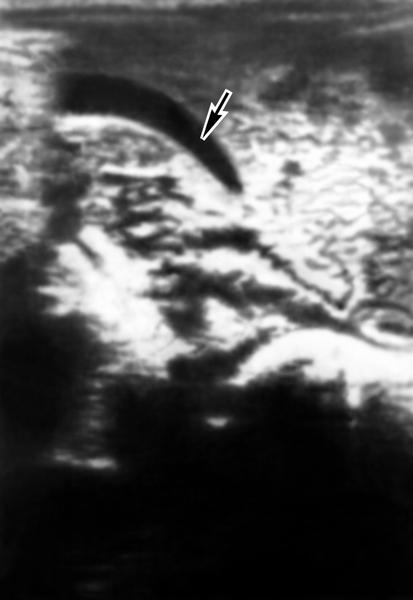 Рис. 3а). Ультразвуковая сканограмма желчного пузыря в норме: неизмененный желчный пузырь указан стрелкой