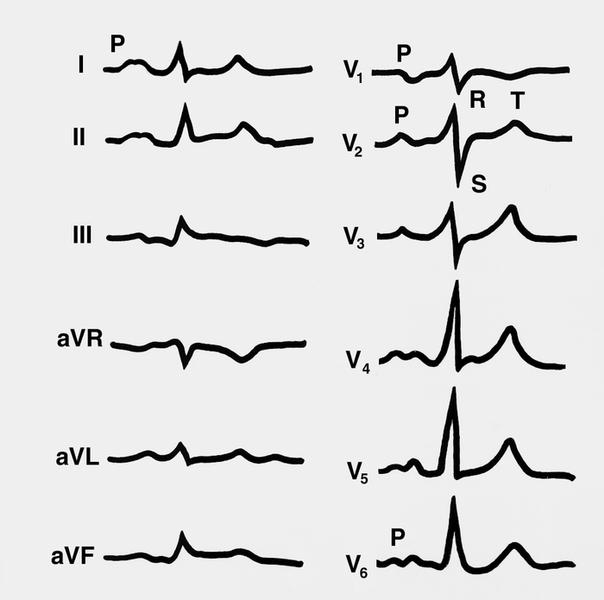 Электрокардиография - это.