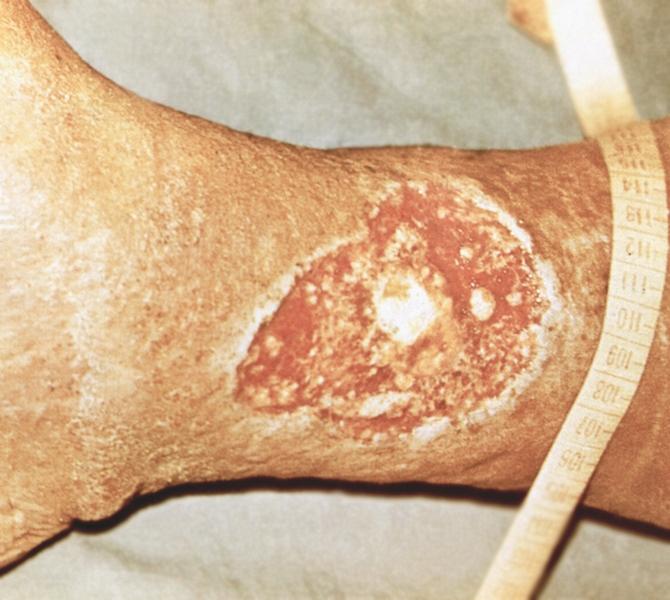 Рис. 1. Трофическая язва голени у больного с варикозным расширением вен: видна язва с утолщенными и...