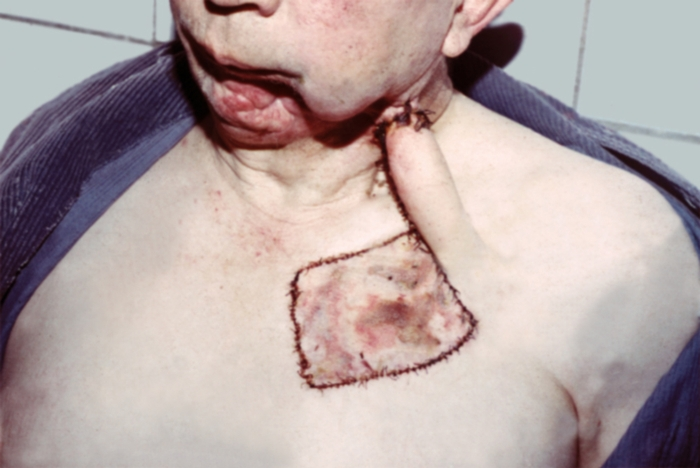 Трансплантат Тирша фото