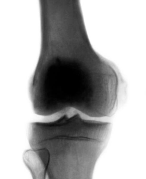 Рентгенограмма коленного сустава при болезни пеллегрини - штиды.