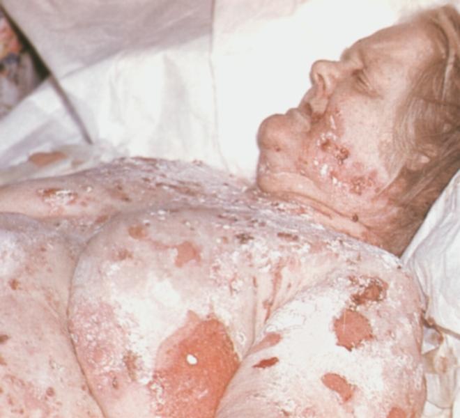 вульгарной пузырчаткой на коже груди ...: dic.academic.ru/dic.nsf/enc_medicine/25592/Пузырчатка