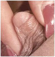 Немало говорилось о роли клитора в создании полового удовлетворения женщины. Клитор выполняет двойную роль - рецептора и преобразователя половых стимулов, причем его первостепенной функцией является стимулирование полового напряжения женщины. Длительные наблюдения доказали, что нет взаимосвязи между размерами клитора и его эффективностью в процессе полового стимулирования. Некоторые авторы говорят о ведущей роли расположения клитора на переднем краю симфиза в процессе полового ответа женщины. Сделано предположение, что низкая имплантация клитора благоприятствует сексуальности в связи с непосредственным контактом мужского члена с его головкой. Вместе с тем, независимо от положения клитора мужской член лишь в редких случаях вступает в непосредственный контакт с ним, поскольку происходящая на фазе предельного полового напряжения ретракция клитора поднимает его тело выше нормального положения. Припухлость головки и длина клитора видимо не представляют значения для эффективности полового ответа. Несмотря на то, что анатомическое расположение препятствует непосредственной и длительной стимуляции головки, не следует недооценивать значение вторичного стимулирования при коитусе растяжением малых половых губ мужским членом, которые, в свою очередь, прикладывают механическую тягу на обе стороны крайней плоти клитора. Таким образом, головка клитора оттягивается вниз и его планомерное движение в связи с активным проникновением мужского члена, оказывает существенное стимулирование при любом положении совокупления, за исключением случаев значительного растяжения входа во влагалище или поражения влагалища при предыдущих родах. Лишь суперпозиция или боковое положение женщины при коитусе, когда сохраняется аппозиция между симфизом (лобковое сращение) мужчины и женщины, делает возможным непосредственное стимулирование клитора. Тело клитора можно рассматривать как основная зона чувственного ответа женщины, как на физические, так и на психические стимулы, вырабатываемые и отправляемые в