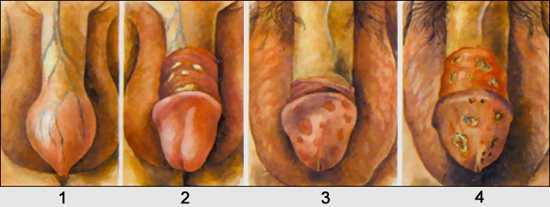1) и в форме гиперемии головки полового члена и внутреннего лис…