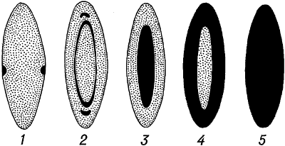 Схематическое изображение различных форм катаракты.
