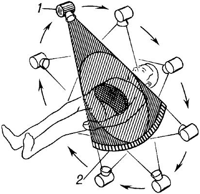Схема работы компьютерного томографа.