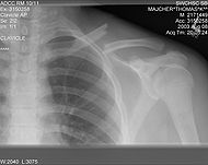 Clavicle fracture left.jpg