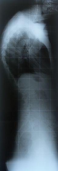RadiografiaRXCifosisScheuermann70Grados.jpg
