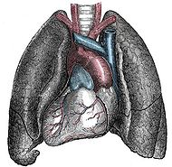 Situs inversus - Mirrored heart and lungs.jpg