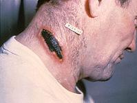 Проявление сибирской язвы на коже.