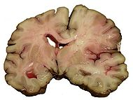 MCA-Stroke-Brain-Human-2.JPG