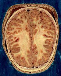 Сколько долей в мозге человека