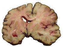 Все последствия ишемического инсульта - подробное описание