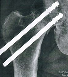 Femoral neck fracture, right hip.jpg