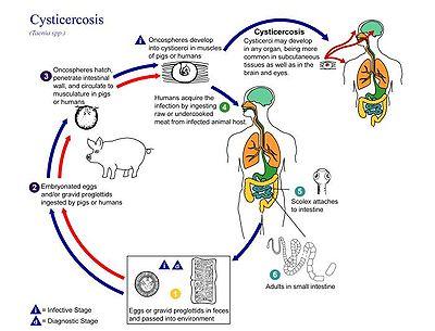 Цистицеркоз головного мозга - симптомы болезни, профилактика и лечение Цистицеркоза головного мозга, причины заболевания и его диагностика на EUROLAB