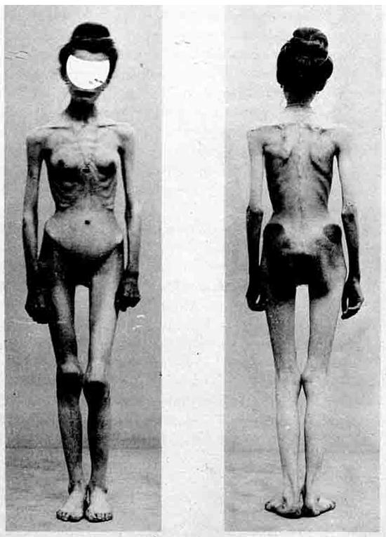 Синдром Фрелиха