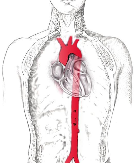 Аорта на схеме