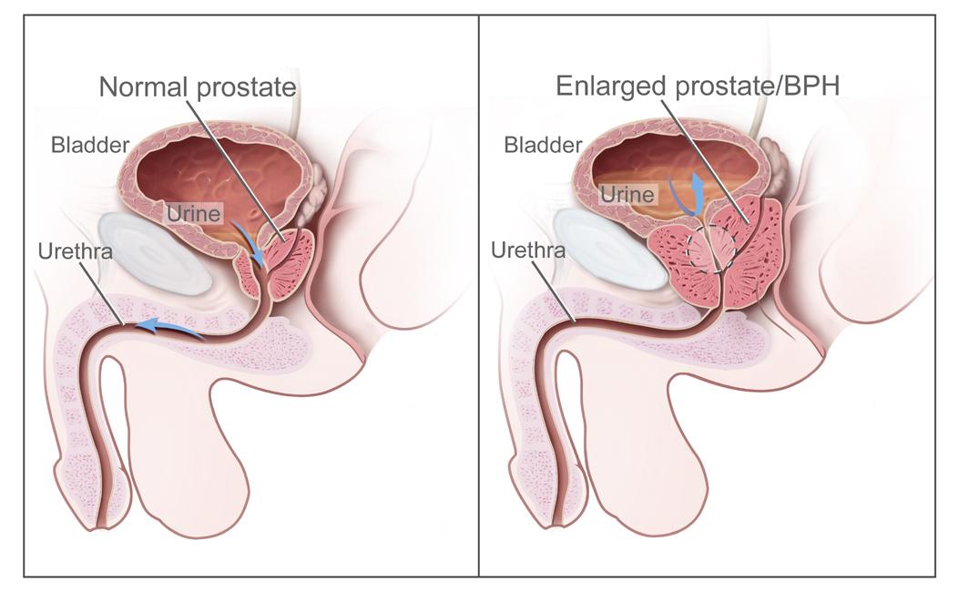 Лечение флутамидом при раке предстательной железы