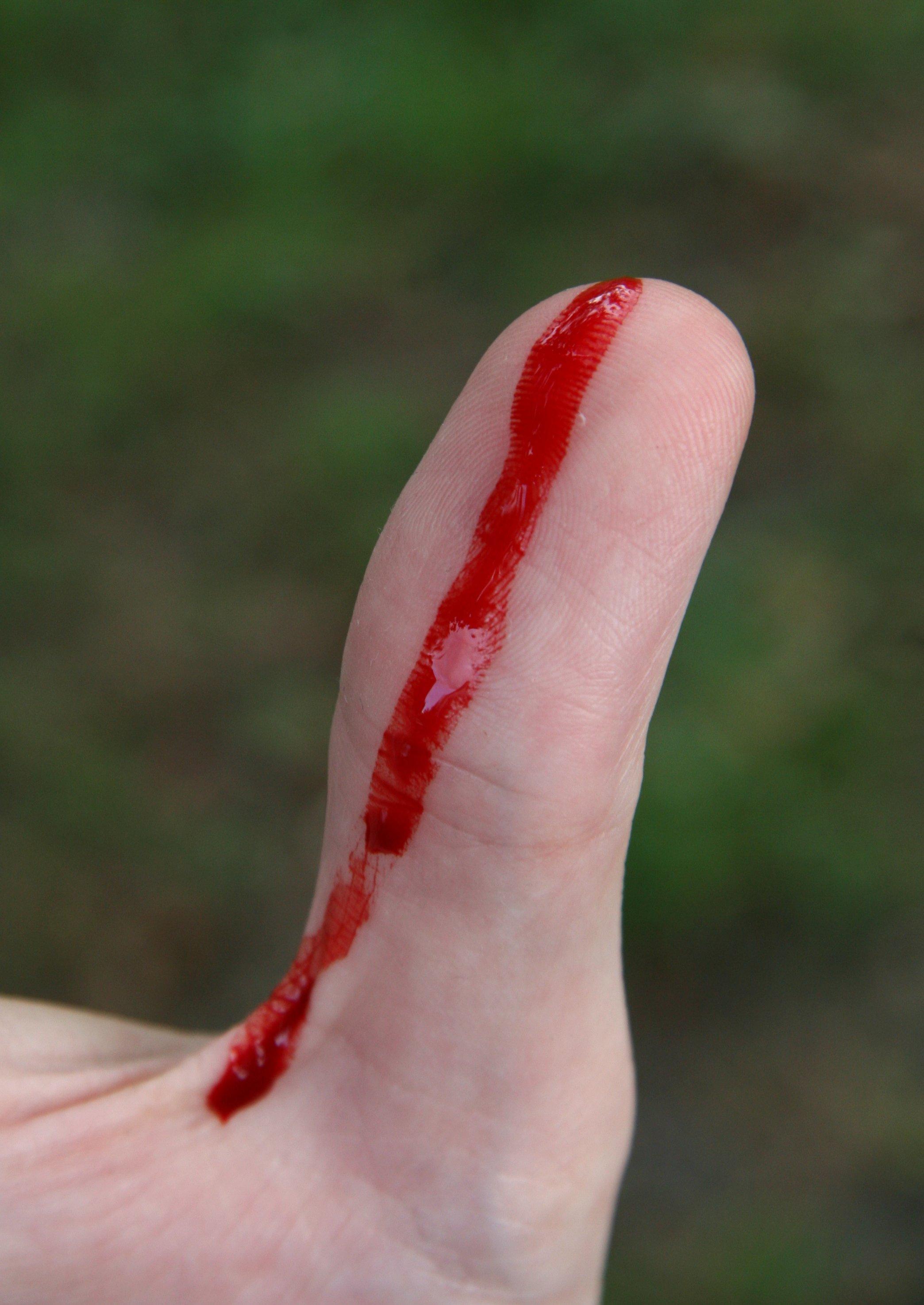 Рвут в кровь 5 фотография