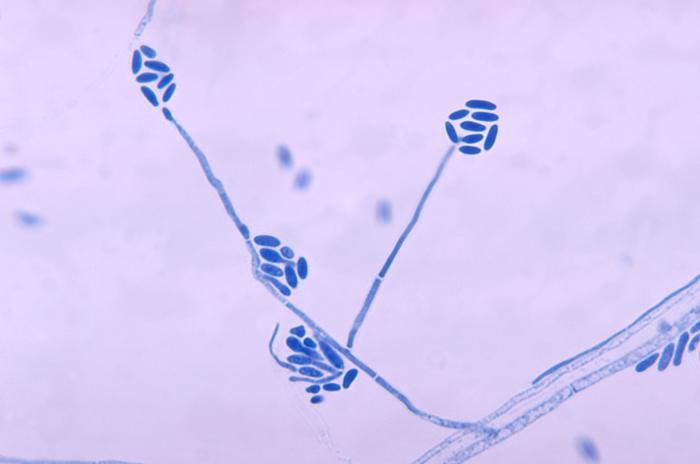 Мицетома фото