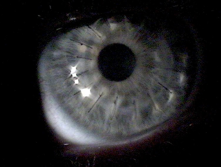 Кератотомия радиальная фото