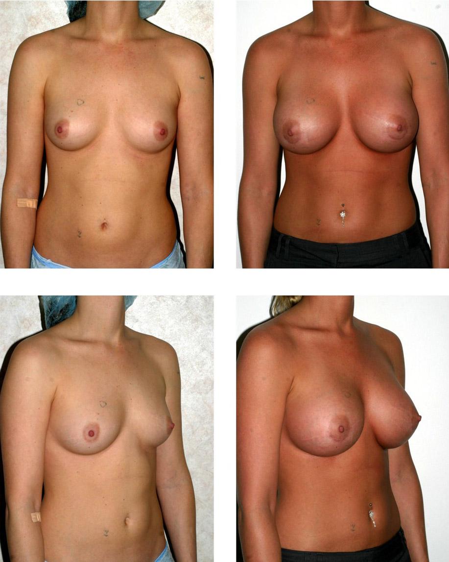увеличение груди фотографии