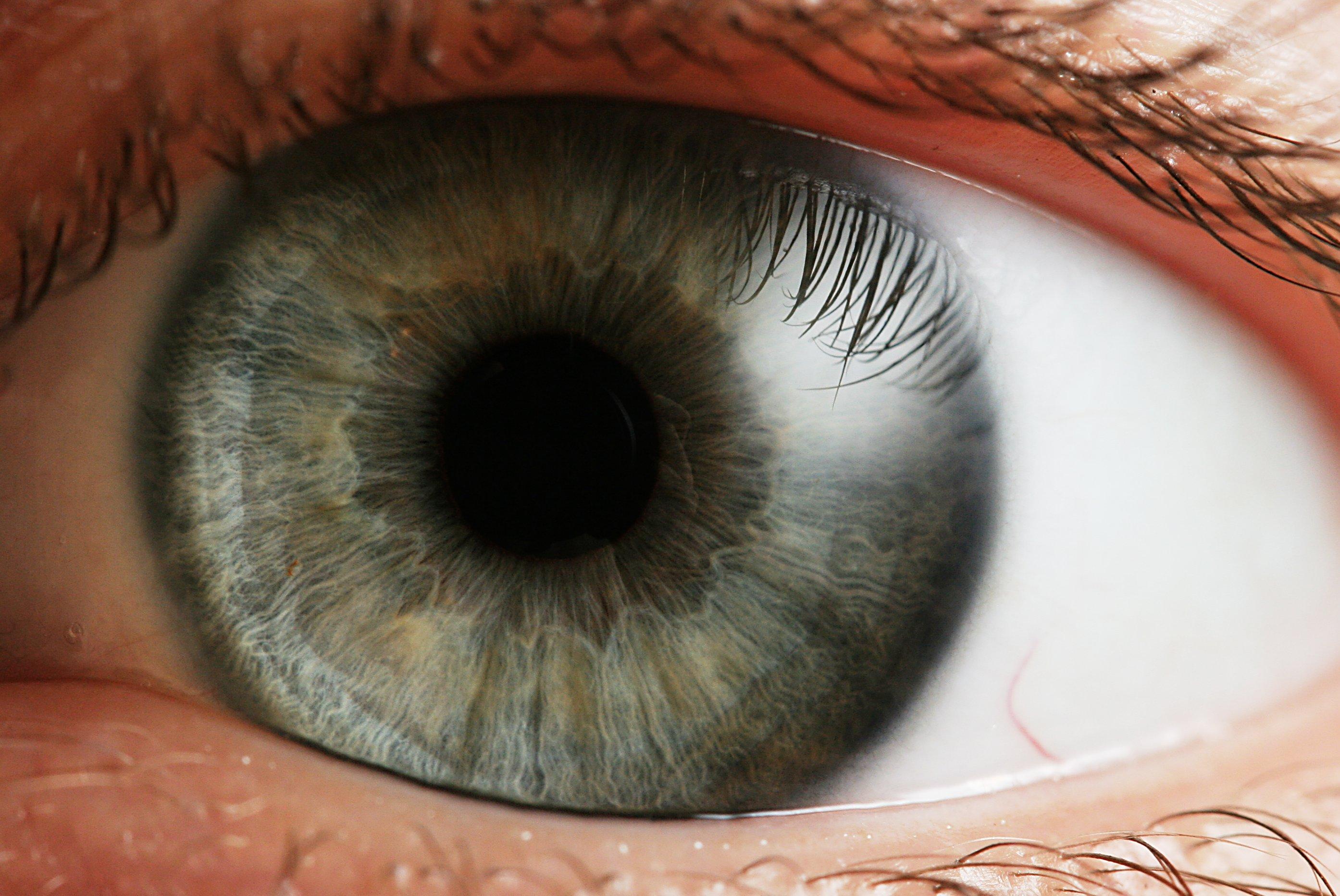 Оболочка глаза радужная