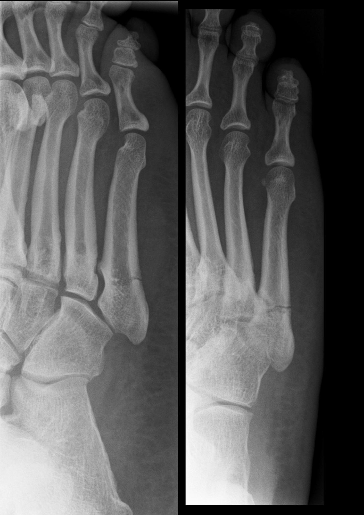 что есть при переломах костей: