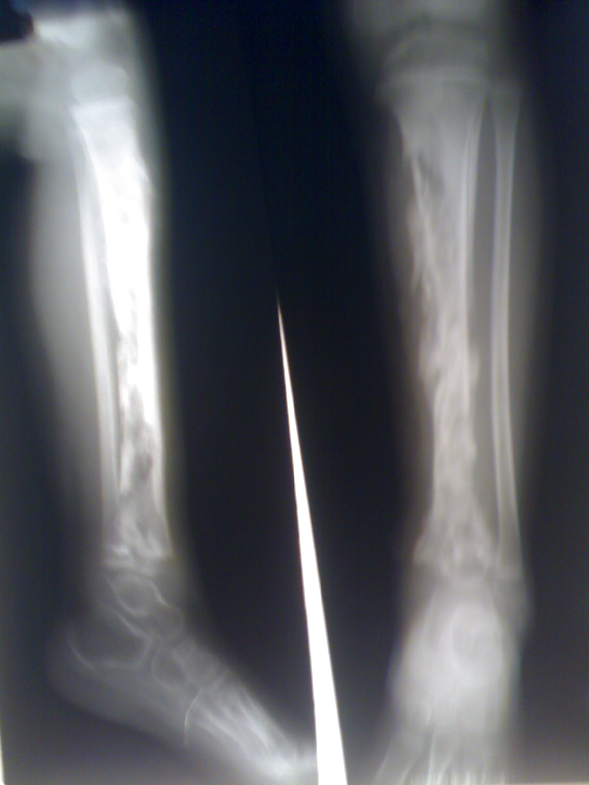 Как лечить остеомиелит 3 фотография