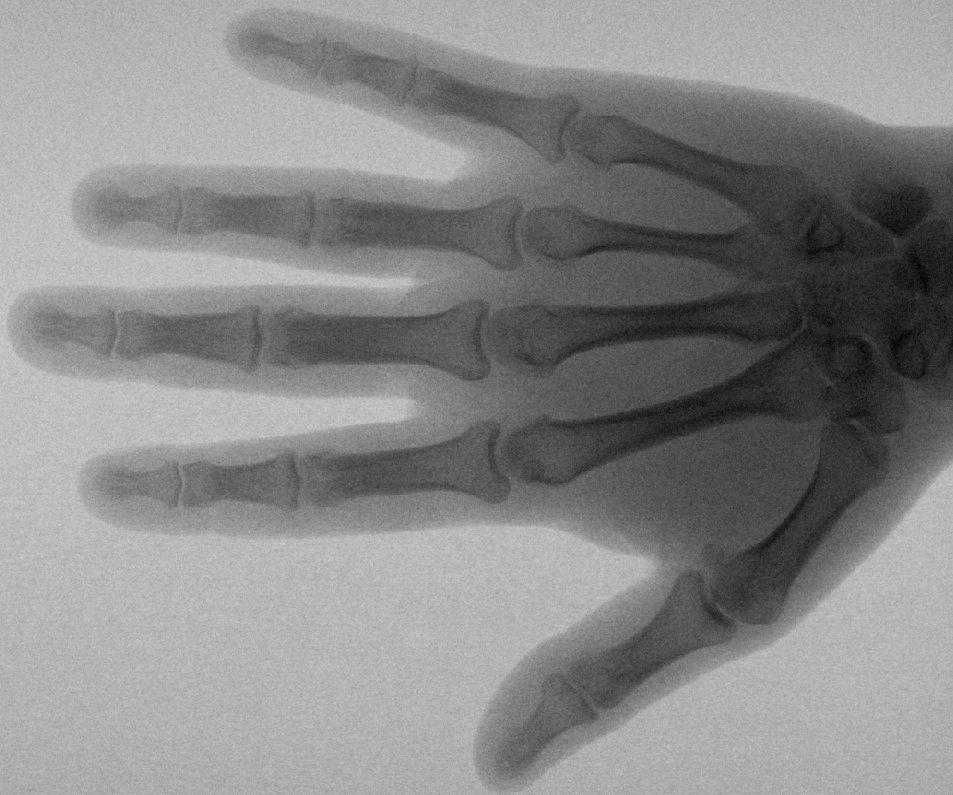 "NEWSru.co.il :: Фото :: Ученые доказали: кости  ""веганцев "" на 6% слабее..."