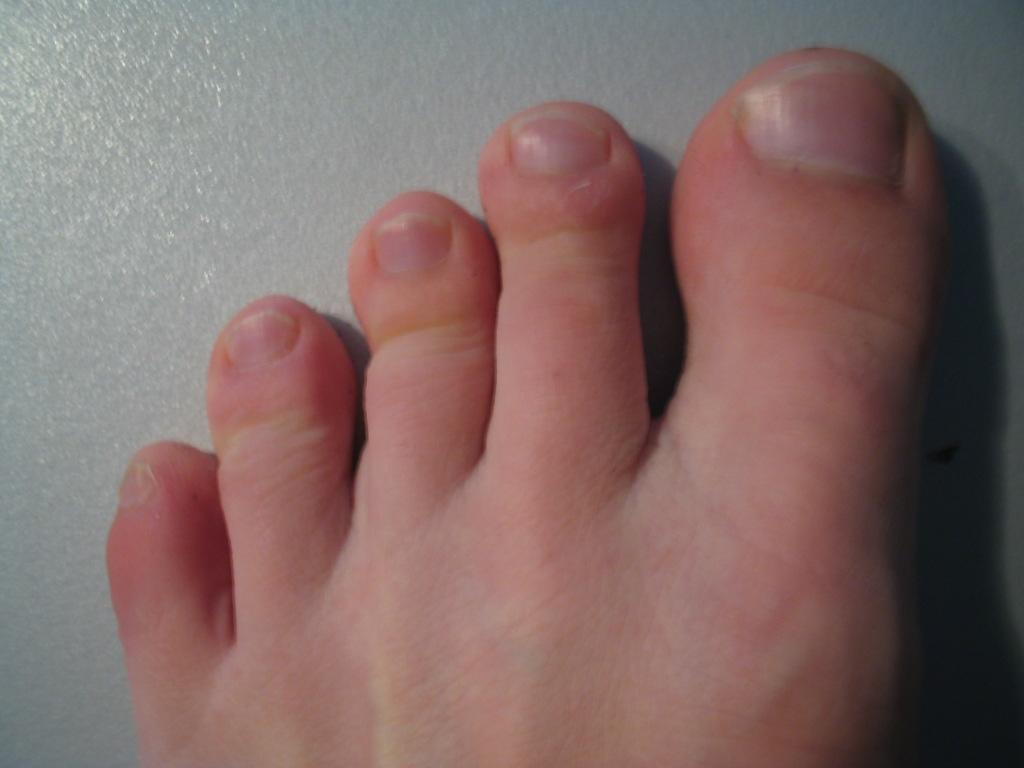 Фото пальцы на ножках у девушки 7 фотография