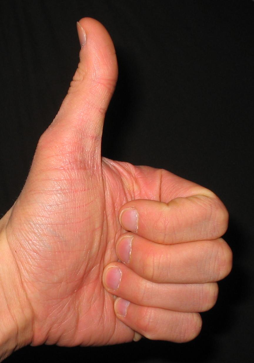 Сравнила палец с попой 2 фотография