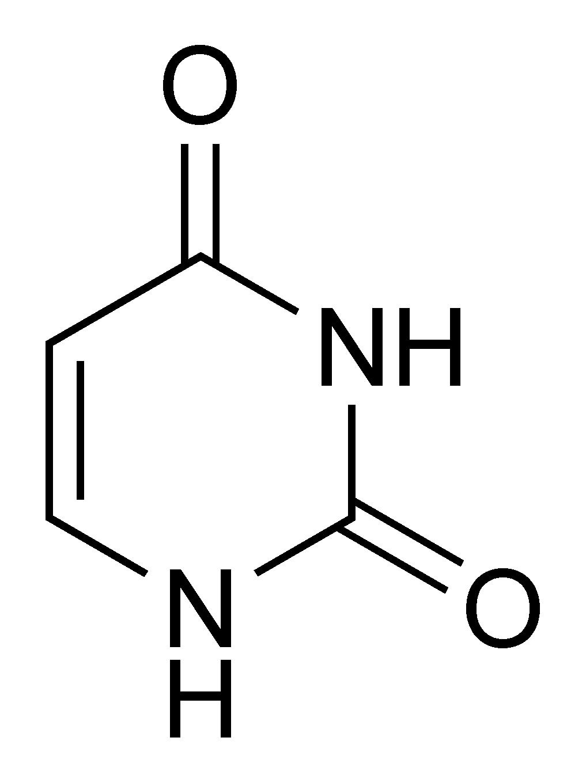 Ургидроз